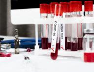 Влизат в сила промените в НРД за направленията за PCR-тестове от личните лекари