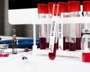 17 новозаразени с коронавирус у нас, пореден ден с повече излекувани – 32-ма