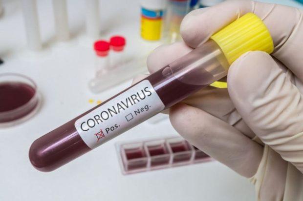 Новите случаи на COVID-19 са 827, починали са 36 пациенти