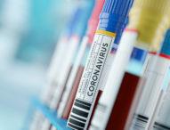 Отново повече излекувани от COVID-19 за денонощието – 3393, заразените за 2185 души